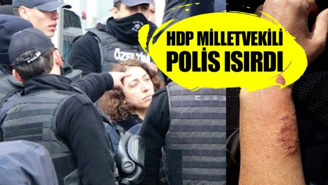HDP'li milletvekili, polisin kolunu ısırdı