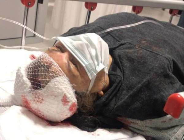 Muğlada köpeklerin saldırısına uğrayan emekli öğretmen ağır yaralandı