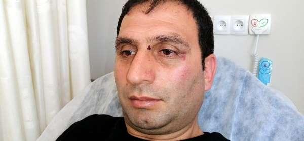 Erzincanspor yöneticileri gazeteciyi döverek hastanelik etti