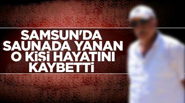 Samsun'da saunada yanan o kişi hayatını kaybetti