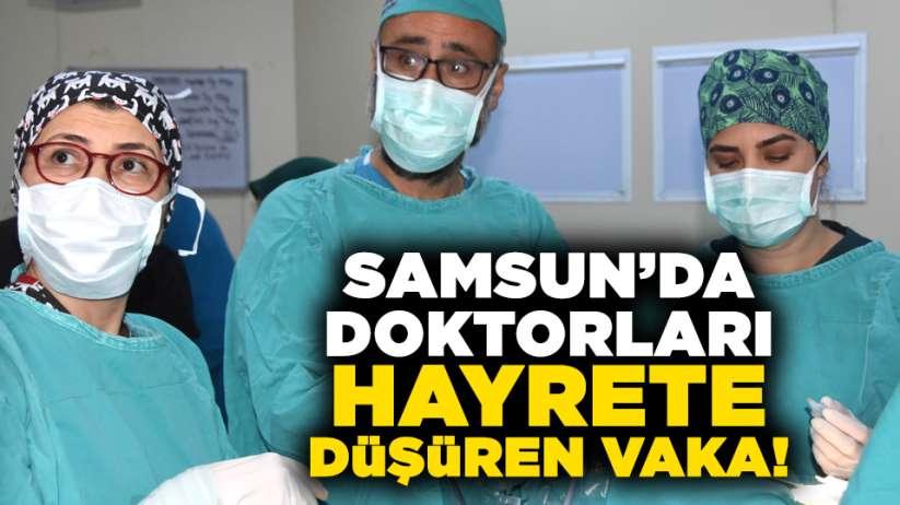 Samsun'da doktorları hayrete düşüren vaka!