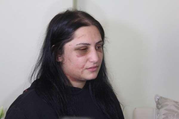 Samsunda eski eşinin darp ettiği kadın konuştu: En ağır şekilde cezalandırılmasını istiyorum