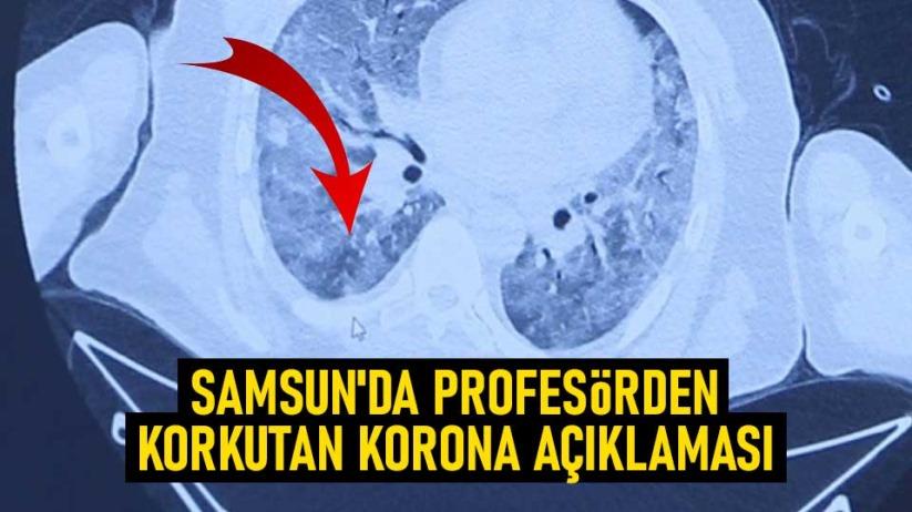 Samsun'da Profesörden korkutan korona açıklaması