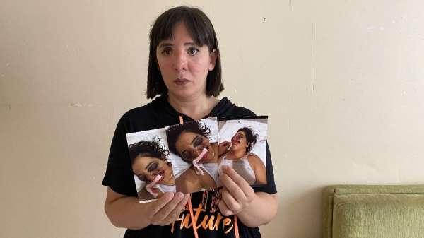 (Özel) ATV kazasında gözünü kaybeden genç kadın adalet bekliyor