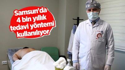 Samsun'da 4 bin yıllık tedavi yöntemi kullanılıyor
