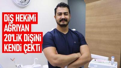 Samsun'da diş hekimi ağrıyan 20'lik dişini kendi çekti
