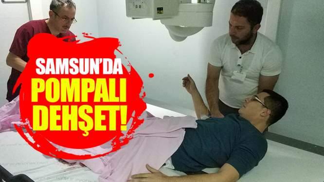 Samsun Haberleri: Samsun'da 1 Kişi Cumaya Giderken Pompalı Saldırıya Uğradı