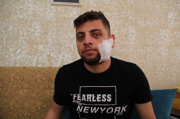 Kadına tokat attı diye uyardı, çatalla yüzünen yaralanıp hastanelik oldu