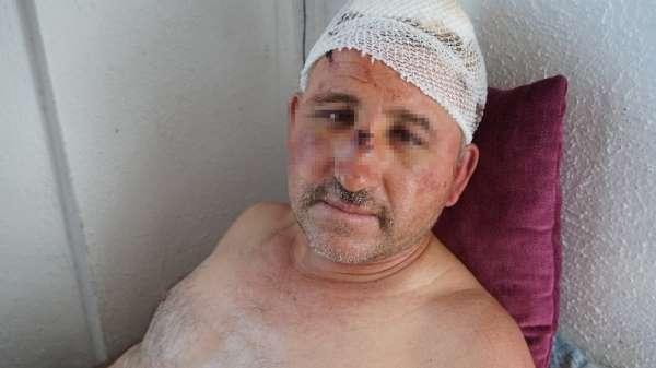 Taciz ettiği iddiasıyla karı-koca tarafından öldüresiye dövülen adamdan şok iddi