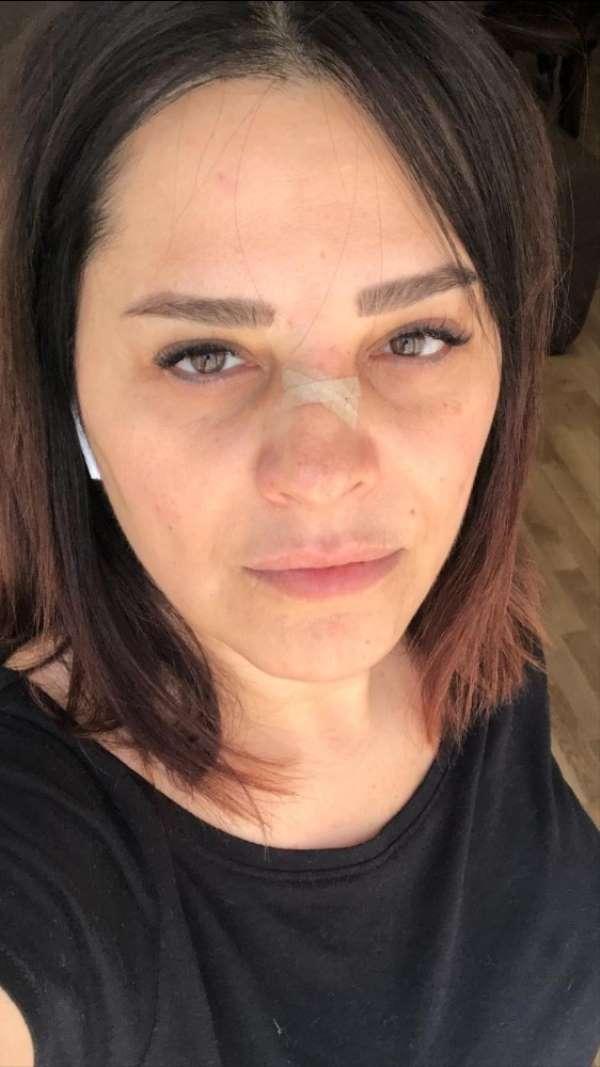 (Özel) Ünlü şarkıcı Reyhan Karaca'nın burnu kırıldı