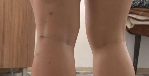 Yürüyüş yaparken köpeklerin saldırısına uğrayan Endonezyalı kadın ağır yaralandı