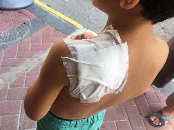 Antalya'da ilkokul öğrencisi, okul dönüşü sokak kopeğinin saldırısına uğradı