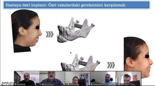 Prof. Dr. Kaymaz: Hastanelerde hastaya özel implant tasarımı ve imalat birimleri kurulmalı