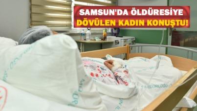 Samsun'da öldüresiye dövülen kadın konuştu!