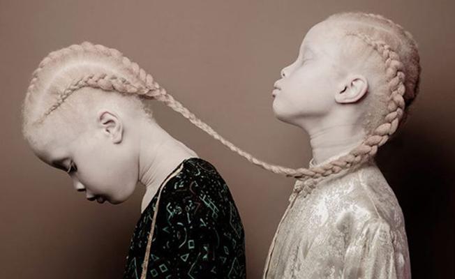 Albinoların enfes güzellikleri