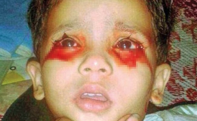 Bu çocuk kan ağlıyor
