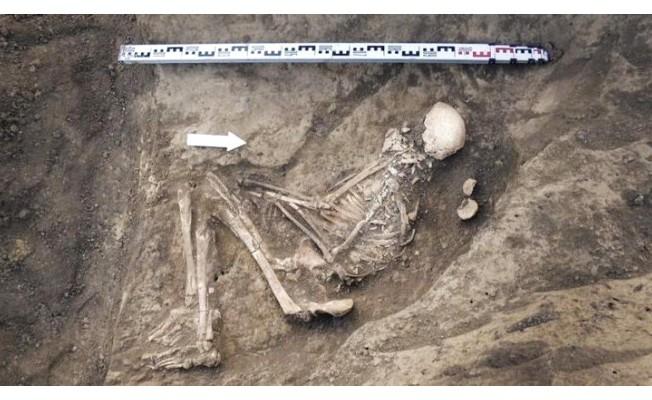 Tıp Tarihini Değiştirecek 4500 Yıllık Keşif
